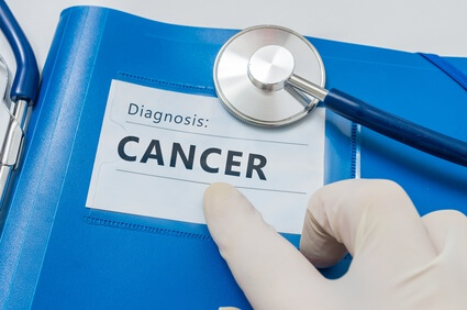 Cancer tests and procedures